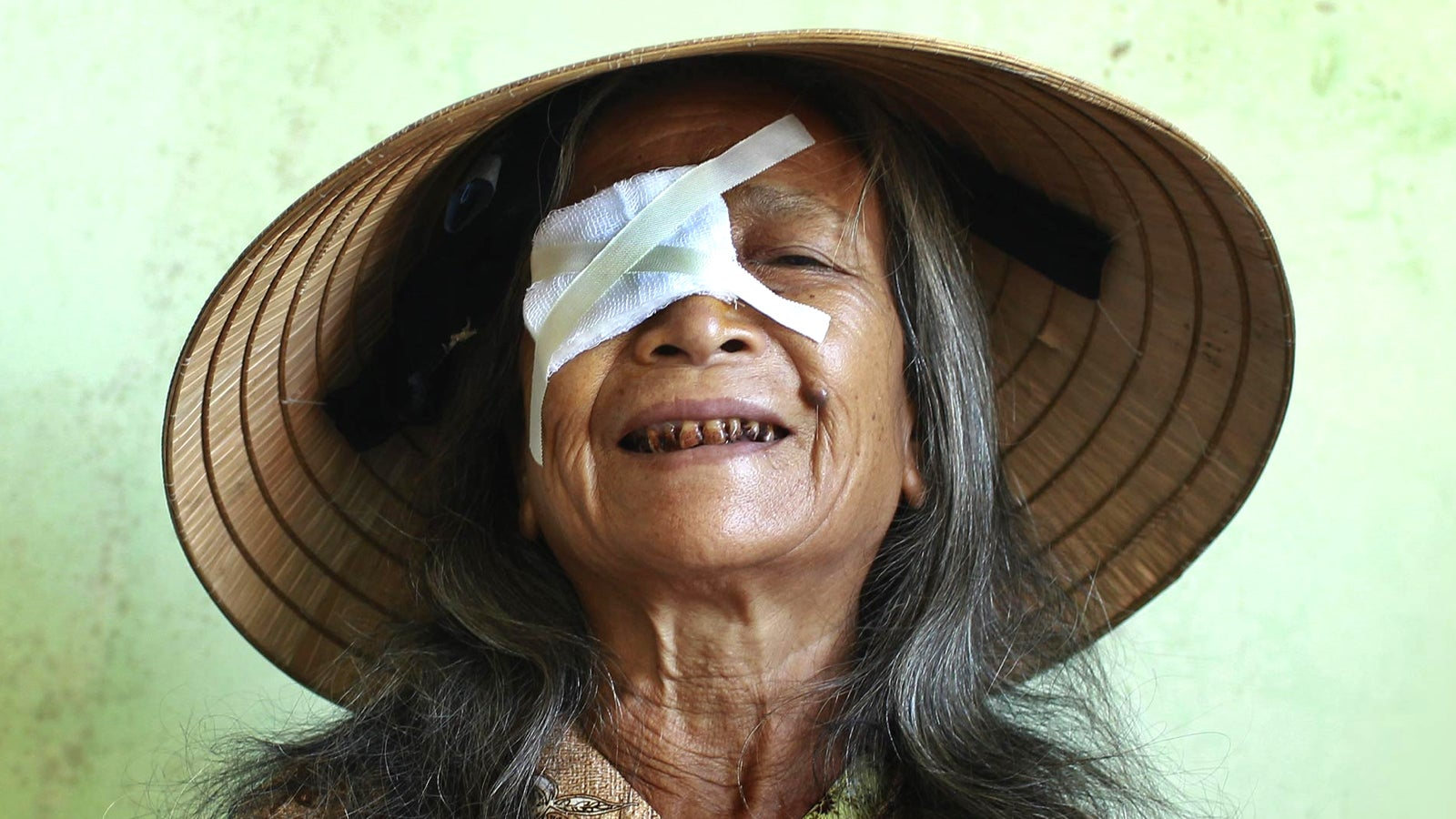 Elderly woman with dressing over her right eye